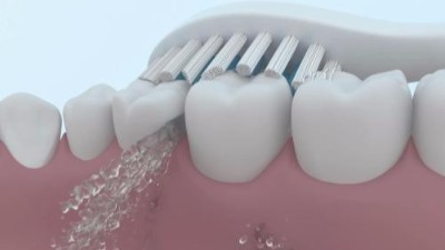 补牙后能用电动牙刷吗?使用电动牙刷有哪些优势?